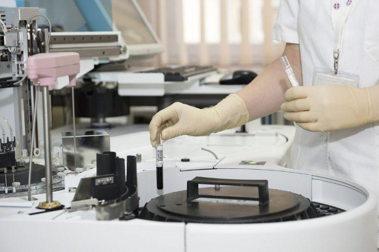 Badania laboratoryjne przydatne w diagnozie i monitorowaniu przebiegu choroby Hashimoto